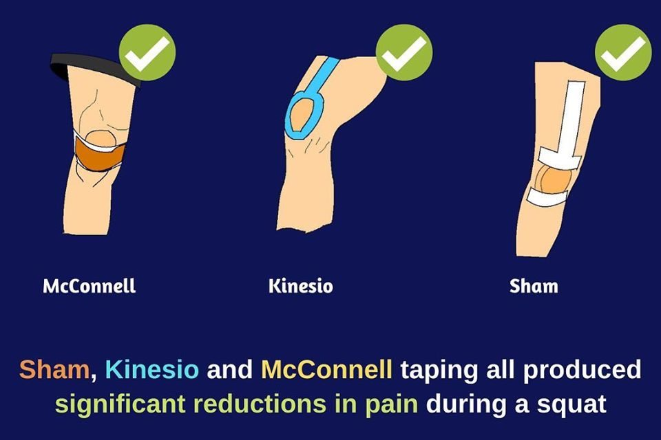 Kinesio Taping and McConnell Taping Not Better Than Sham for Knee Pain