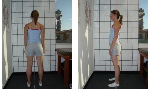 Posture Assessment Is Unreliable in Finding Who Has Low Back Pain