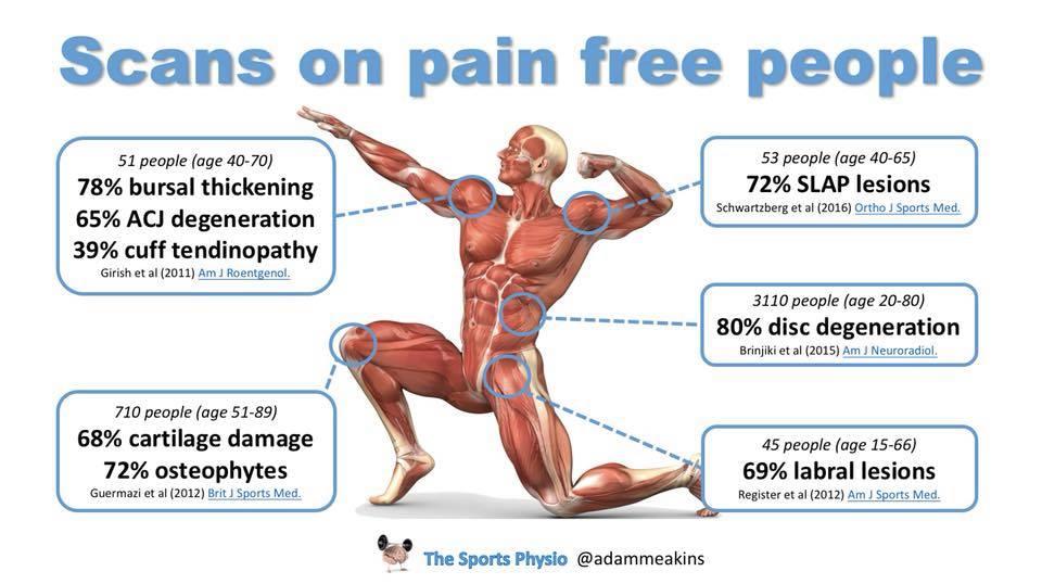 Rio de Janeiro Olympics 2016 back pain