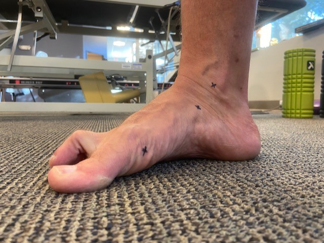 man with normal pronation