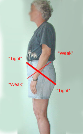 woman with posterior pelvic tilt