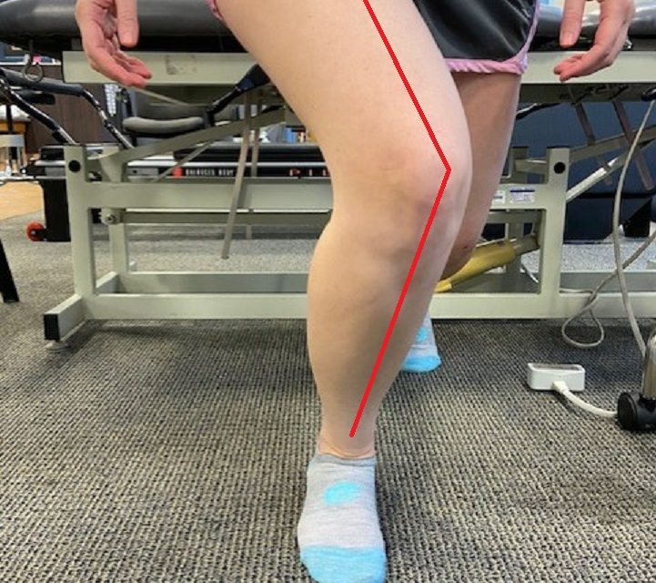Does Q Angle Affect Knee and Hip Pain?