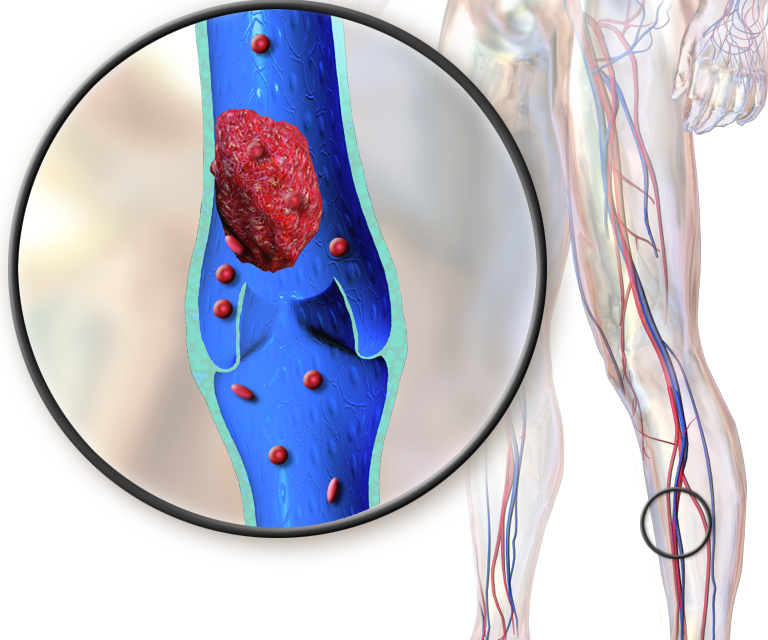 What Is Deep Vein Thrombosis: a Review of the Evidence (2021)