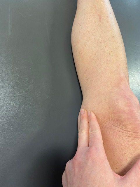 pes anserine bursitis, medial knee pain