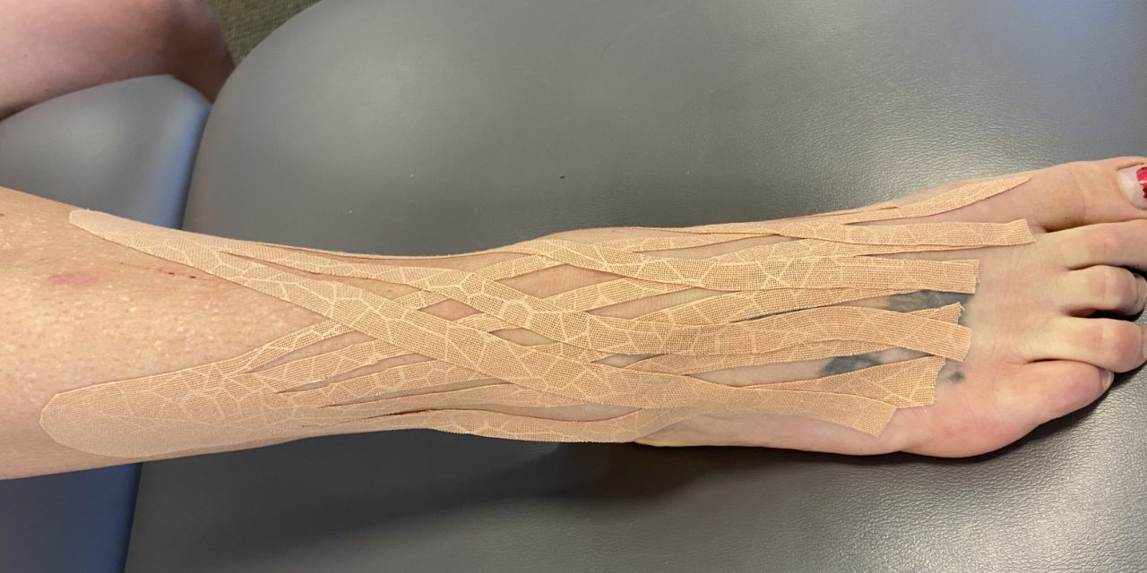 How to Use Kinesio Tape for Your Ankle and Do You Really Need It?