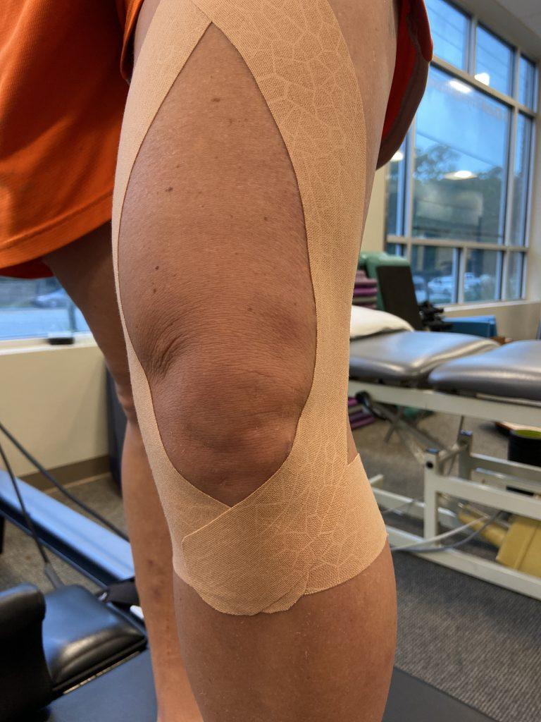 kinesio tape for knee pain