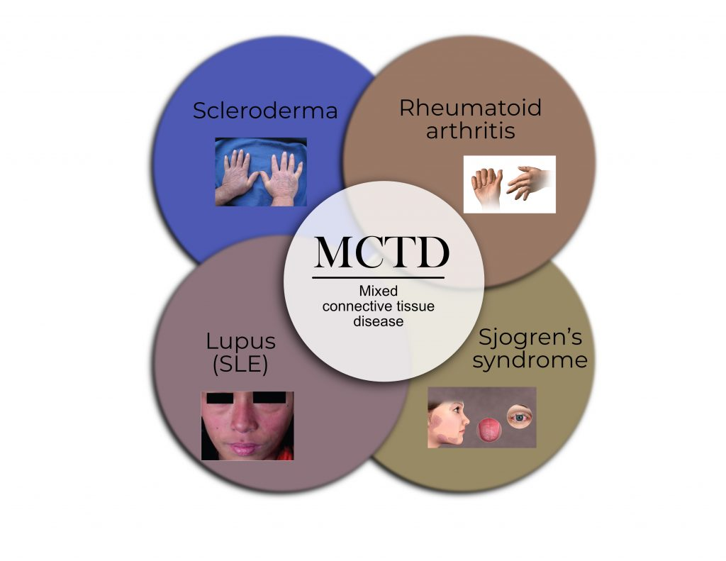 mixed connective tissue disease definition